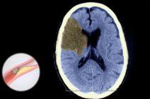 Инсульт головного мозга по ишемическому типу