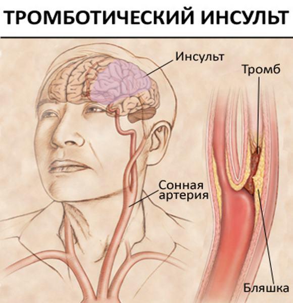 Тромботический инсульт обусловлен первичной тромботической окклюзией мозгового сосуда
