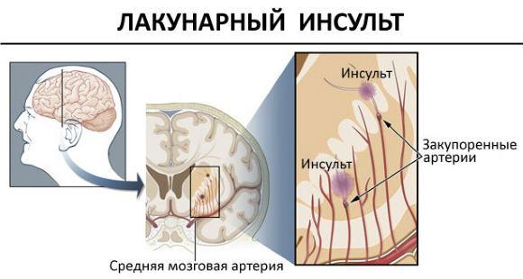 При лакунарном инсульте повреждаются артерии небольшого размера