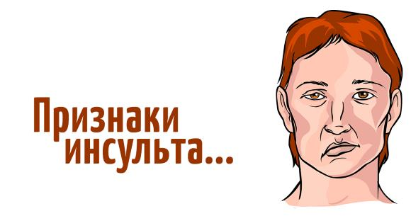 Перекос лица при ОНМК