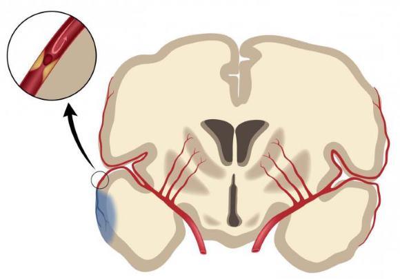 Атеротромботический инсульт