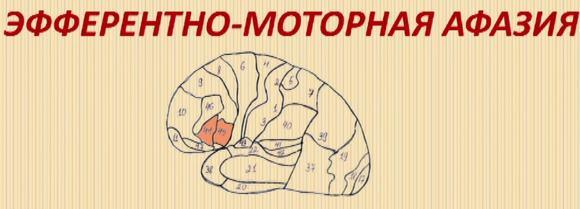 Эфферентная моторная афазия многовариантна