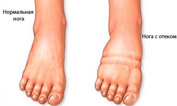 Появление отеков на ногах - это повод обратиться к врачу