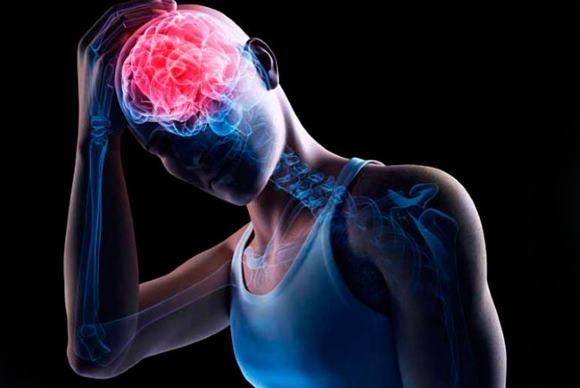 Внутримозговое кровизлияние может проявляться общемозговыми, менингеальными и очаговыми симптомами