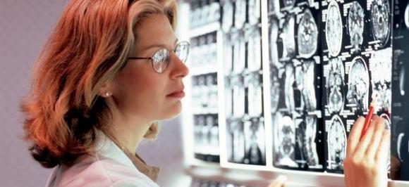 Невролог изучает томограмму головного мозга