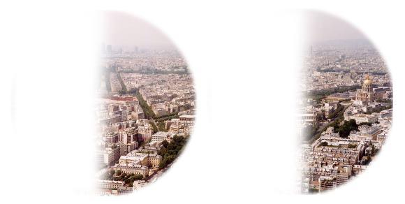 Выпадение восприятия одноименных правых половин поля зрения