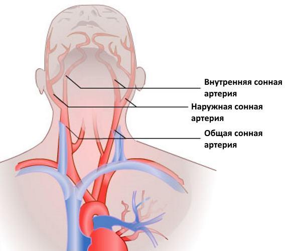 Сонные артерии обеспечивают около 80% притока крови к мозгу