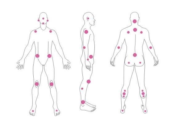 Пролежни образуются в местах наибольшего давления при соприкосновении кожи с постелью