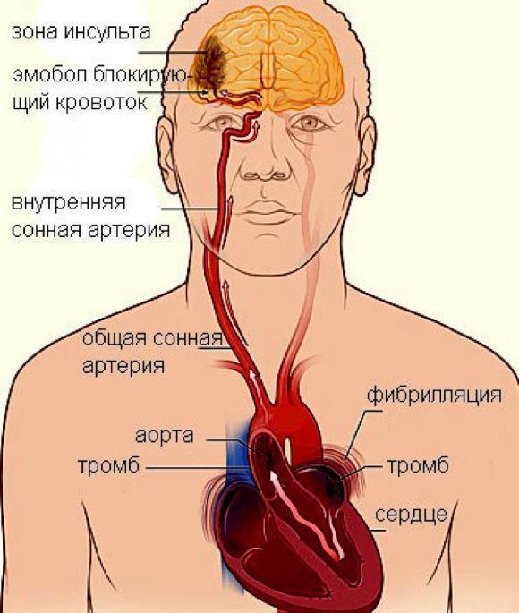 ОНМК по ишемическому типу