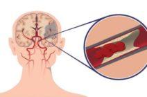 Насколько серьезным может быть течение ишемического инсульта?
