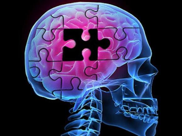 ОНМК приводит к нарушениям функционирования головного мозга