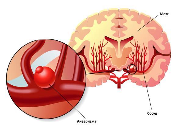 Выпячивание стенки артерии