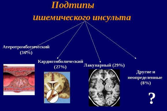 Подтипы ишемического инсульта