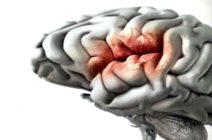 Причины развития сосудистой катастрофы — инсульта