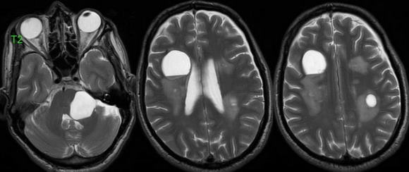Клиника эхинококкоза напоминает клинику опухоли головного мозга