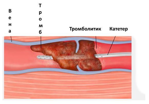 Процесс растворения тромба