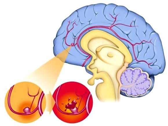 САК при остром нарушении мозгового кровообращения по геморрагическому типу