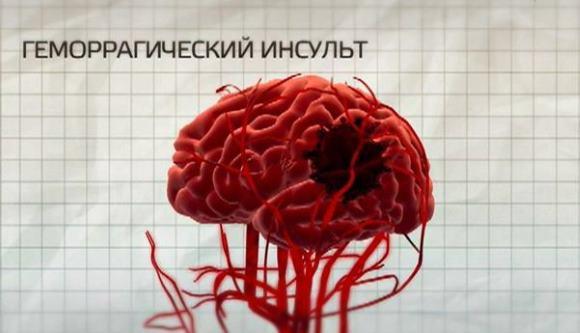 Образование гематомы при геморрагическом инсульте