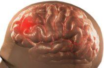 Тяжелая форма ОНМК: проявления, факторы риска, принципы лечения