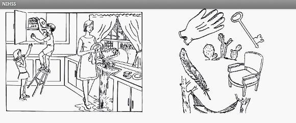 Иллюстрации к шкале тяжести инсульта