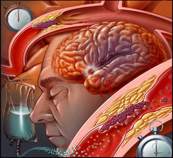 Прогноз инсульта зависит от степени поражения головного мозга
