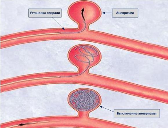 Один из методов лечения аневризмы