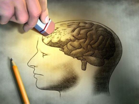 После хирургического лечения геморрагического инсульта у пациента может наблюдаться нарушение когнитивных функций