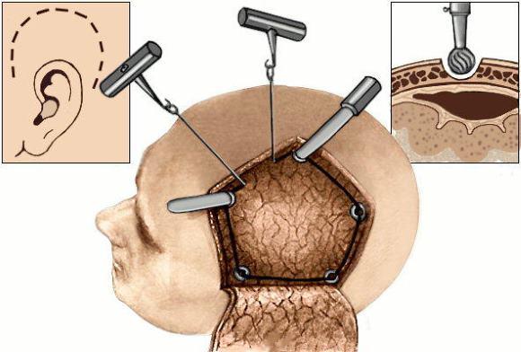 Наложения фрезевых отверстий и выкраивание костно-надкостного лоскута пилой