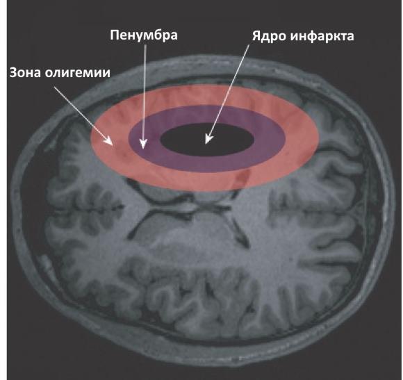 Ишемическая полутень - зона ишемического поражения обратимого характера