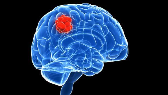 Опухоли головного мозга могут быть первичными и вторичными