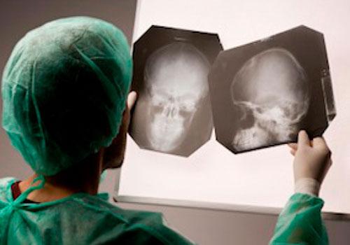 Обследование и лечение сотрясения мозга