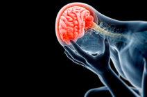 Лёгкая форма сотрясения головного мозга: симптомы и лечение