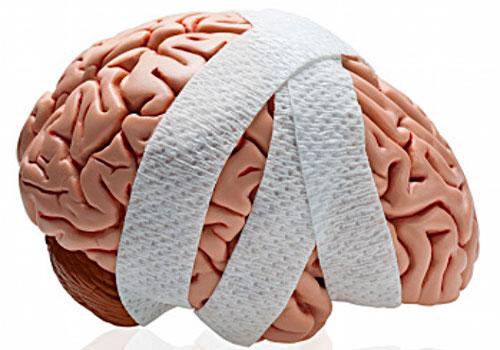 Черепно-мозговая травма - как диагностировать?