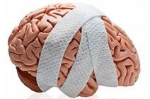 Черепно-мозговые травмы – диагностический алгоритм
