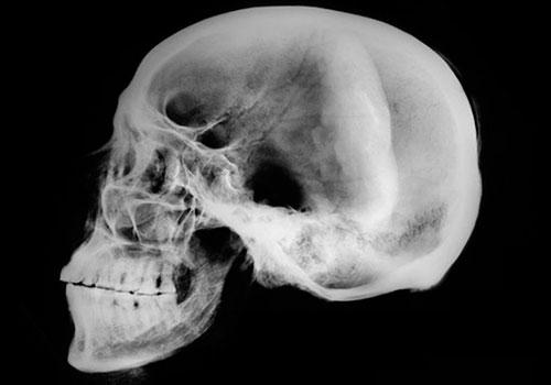 Рентген головы при подозрении на сотрясение