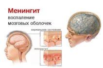 Диагностика менингита «своими руками»: возможно ли это?