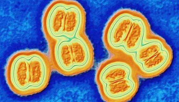 Нейссерия менингидис