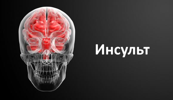 Основной причиной геморрагического инсульта является гипертоническая болезнь