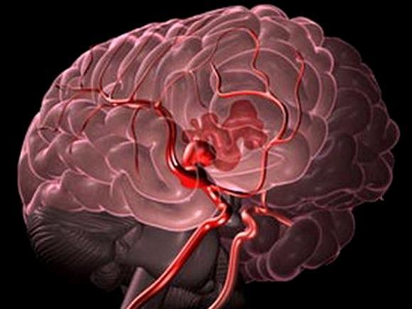 В патогенезе геморрагического инсульта наибольшее значение имеет артериальная гипертензия