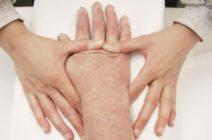 Лечение спастичности после инсульта