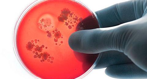 Вирус гнойного менингита