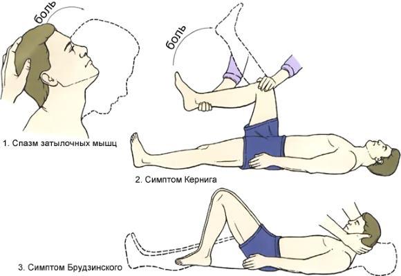Главные менингеальные симптомы