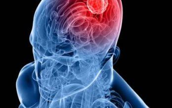 Считать ли инсульт смертельным для жизни