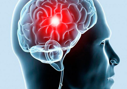 Лакунарный инсульт без ухудшения состояния больного