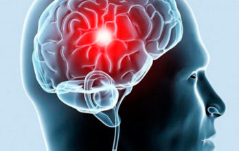 Первые признаки развития инсульта и транзиторных ишемических атак у женщин