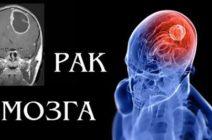 Как распознать рак мозга, какие обследования нужно проходить?