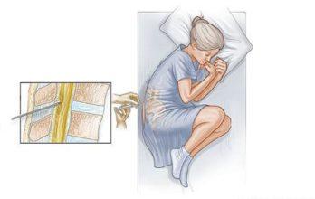 Люмбальная пункция как неотъемлемая составляющая диагностики менингита