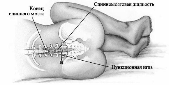 Проведение спинномозговой пункции