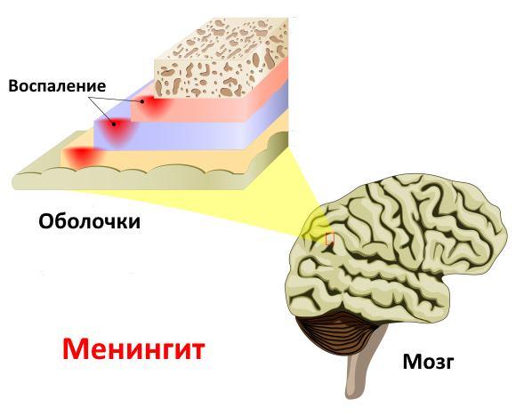 Воспалительный процесс при менингите может быть вызван разными микроорганизмами