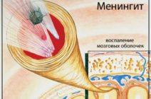 Менингит – можно ли предотвратить заражение?